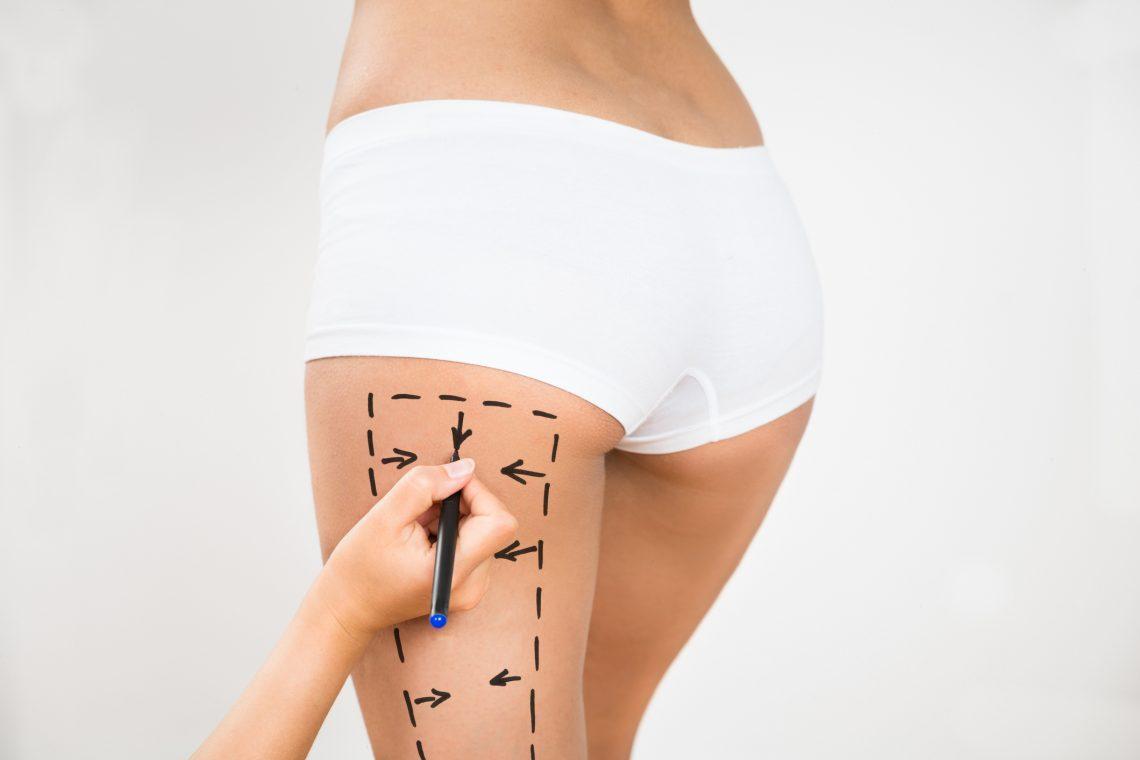 Procedimentos estéticos para melhorar a aparência dos contorno dos glúteos